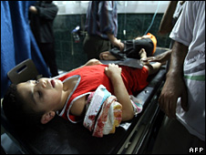 Boy injured in Gaza explosion (25 July 2008)