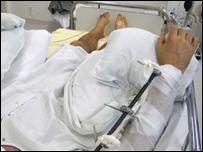 Paciente con brazos trasplantados