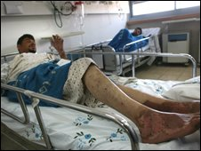 Wounded Fatah supporter being treated in Israel 3 August 2008