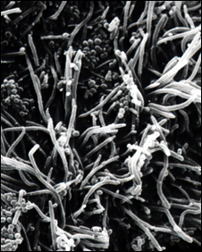 Electron microscope image showing bacteria growing in dental plaque