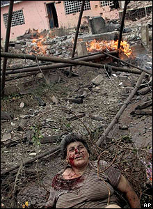 Georgian woman wounded in Russian air raid on Gori, 9 Aug 08