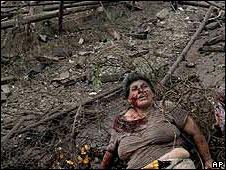 Georgian woman wounded in Russian air raid, Gori, 9 August