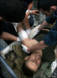 An injured Russian soldier  (09/08/08)