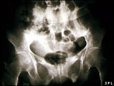 x-ray showing osteomalacia