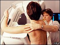 Mujer realizándose una mamografía.