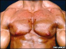Bodybuilder's steroid side-effects