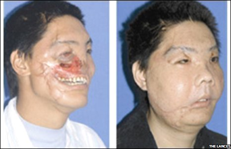 Face transplant after bear attack