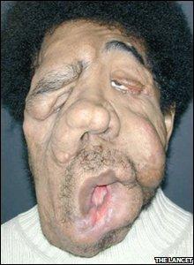 Facial tumour