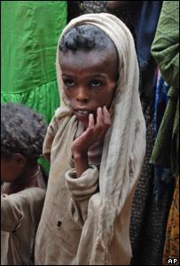 Niña etíope de 6 años en un avanzado estado de desnutrición.