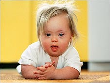 A baby girl with Down's syndrome