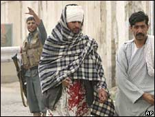 A wounded Afghan man walks out of a police station after suicide bomb blasts in Kandahar