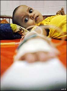 A Bangladeshi girl receives treatment for a waterborne disease in Dhaka