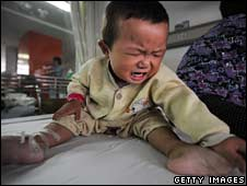 Fifteen-month-old Tian Yaowen, who suffers kidney stones, cries in a ward of Tongji Hospital in Hubei province on Monday