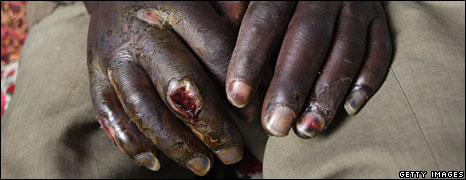 File photo of the hands of an opposition MDC supporter, June 2008