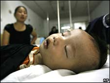 A child receiving treatment for developing kidney stones after consuming tainted milk formula sleeps in hospital in Wuhan, Hubei province, on Wednesday