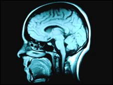 MRI head scan