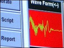 Voice-risk analyser software