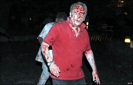 An injured foreigner. Photo: 20 September 2008