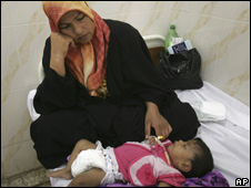 Iraqi woman nurses her daughter suffering from cholera