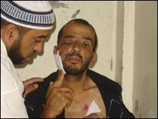 Awwad Sror after being hit by rubber-coated bullets