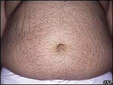 Large stomach