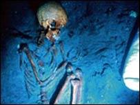 Esqueleto con TB