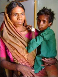 Malnourished child with his mother
