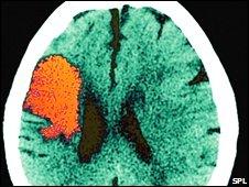CT scan of a stroke victim's brain
