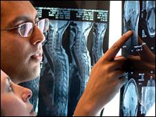MS X-rays