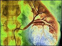 Tumor canceroso renal
