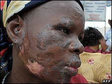 A woman whose face is covered in lesions in Abidjan (September 2008)