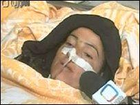 Раненая сирийская женщина