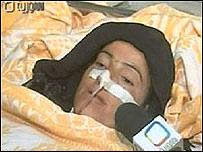 Mujer herida en el ataque. Imagen: tv de siria