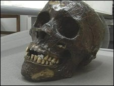 Mary Ann Higgins' skull
