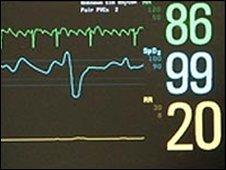 Electrocardiograph (ECG)