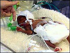Premature baby