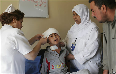 Iraqi child is treated after the triple bombings in Baghdad