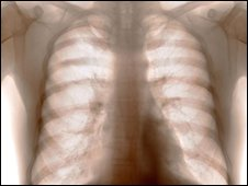 X-ray of a healthy chest, showing the lungs and heart