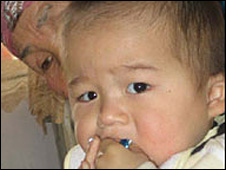 Infected Kazakh child and his mother