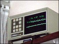 Aparato para monitorear los electrocardiogramas