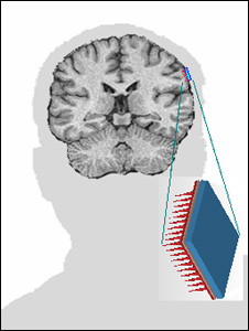 Diagram of where the sensor could be implanted onto the brain