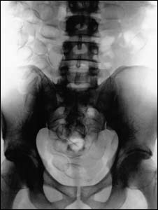 X-ray showing drugs inside a body (pic: HMRC)