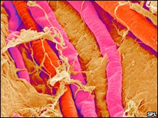 Blood vessels in the brain