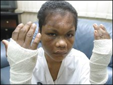 Nirmala Bonat shows her bandaged arms at the Indonesian embassy in Kuala Lumpur, 19 May 2004