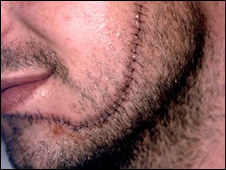 Man with facial stitches