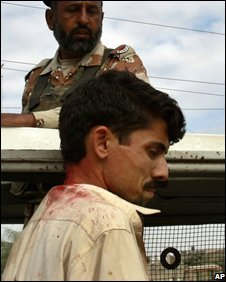 Local person injured in the Karachi violence