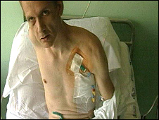 Mark Covell in hospital after the attack