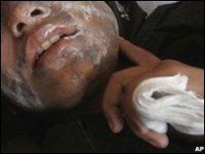 Kandahar schoolgirl after last month's acid attack