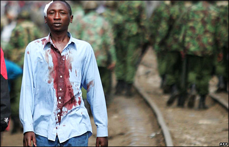 A Kikuyu man from Nairobi's Kibera slum walks in a bloodied shirt from police during ethnic clashes (Photo: Simon Maina/AFP - 29 January 2008)