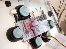 Platelet machine